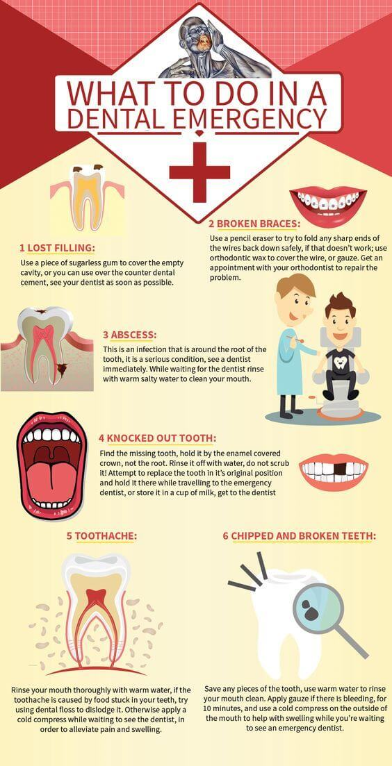 What to do in Dental Emergency